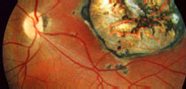Exames de vista