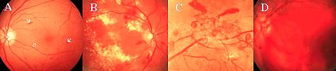 cirurgia para o Glaucoma